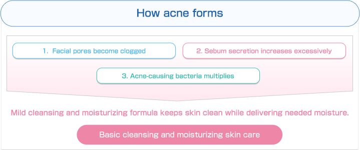 How acne forms | 1. Facial pores become clogged | 2. Sebum secretion increases excessively | 3. Acne-causing bacteria multiplies | Mild cleansing and moisturizing formula keeps skin clean while delivering needed moisture. | Basic cleansing and moisturizing skin care.