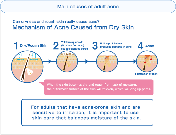 Main causes of adult acne | Can dryness and rough skin really cause acne? Mechanism of Acne Caused from Dry Skin | 1. Dry/Rough Skin 2. Thickening of skin (Stratum Corneum) causes clogged pores 3. Build-up of Sebum produces bacteria in acne 4. Acne | When the skin becomes dry and rough from lack of moisture,the outermost surface of the skin will thicken, which will clog up pores.For adults that have acne-prone skin and are sensitive to irritation, it is important to use skin care that balances moisture of the skin.